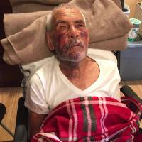 Elderly_man_beaten__told_to__go_back__to_0_20180710030438-846653543