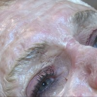 Zombie Facial Invades South Charleston Skin Clinic